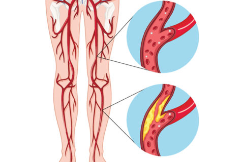 Атеросклеротическая бляшка сужает просвет сосуда, уменьшая кровоток в этой области