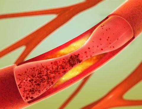 Атеросклеротическая бляшка в просвете сосуда