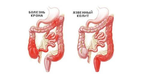 Часто нарушение кровообращения в кишке провоцируют эти болезни