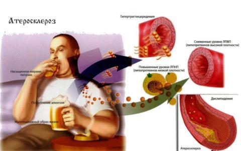 Часто причиной роста холестерола в крови становится неправильный образ жизни (см. фото)