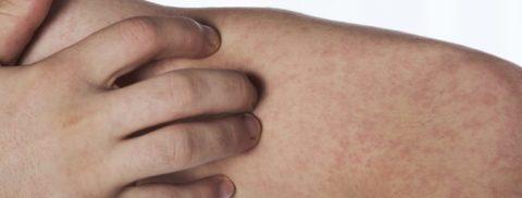 Даже небольшая сыпь на коже может быть признаком васкулита