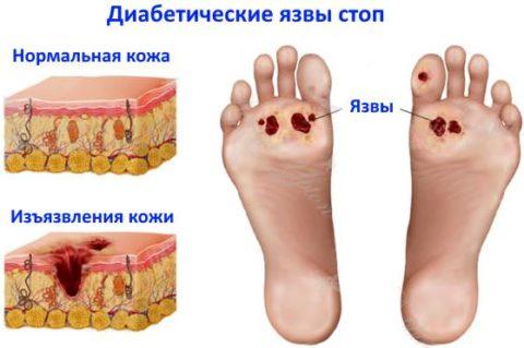 Диабетическая стопа – симптомокомплекс, развивающийся при нарушенном кровообращении в нижних конечностях