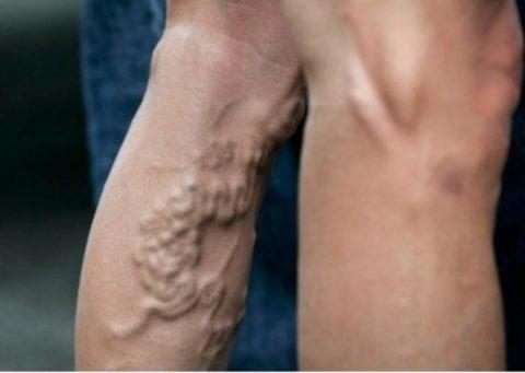 Фото варикоза ног у мужчин