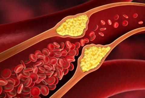 Изменения сосудистой стенки при диабете становятся причиной отложения на ней холестерина