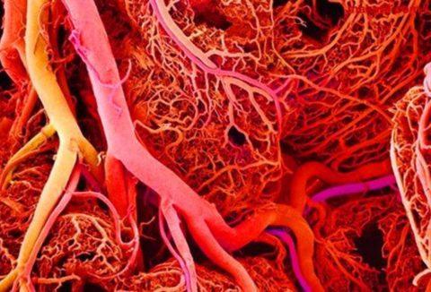Как страдают сосуды в кровеносной системе человека.