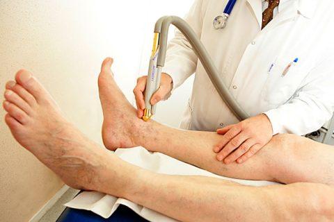 Какие методы диагностики и лечения применяются во флебологии.