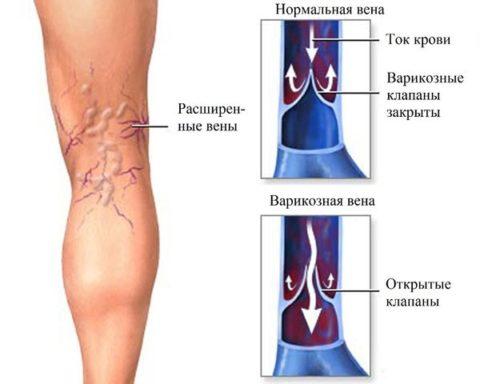 Механизм проявления варикоза.