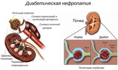 На фото – патогенез ангионефропатии