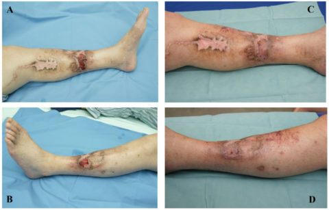 На фото представлены примеры незаживающих язв до лечения (слева) и после него (справа).