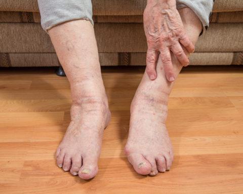 Отечность и боль в ногах как симптомы тромбофлебита.