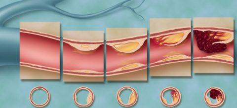 При атеросклерозе ишемия может длительно компенсироваться