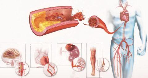 При атеросклерозе нарушается кровообращение в большинстве внутренних органах