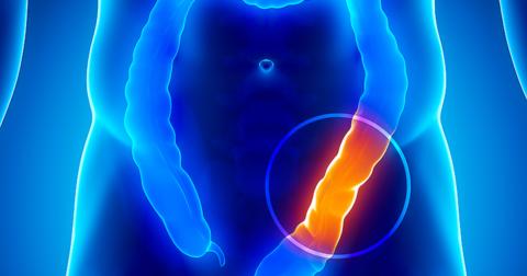 При ишемии артерий нижних отделов ЖКТ развивается функциональная кишечная непроходимость