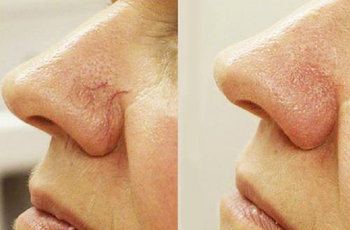 Лазерное удаление сосудов на носу