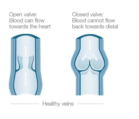 Работа венозных клапанов заключается в предупреждении ретроградного тока крови.