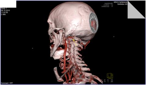 Трехмерная реконструкция артерий шеи