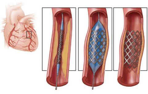 С помощью стента можно восстановить кровоток даже при значительной артериальной окклюзии