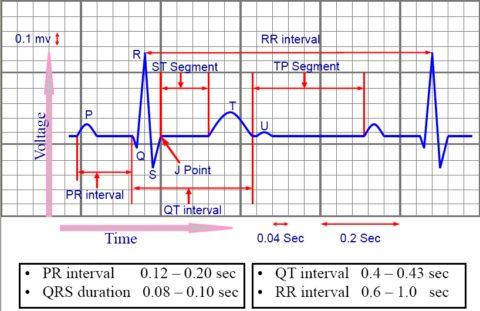 Сематическое изображение составных частей электрокардиограммы.