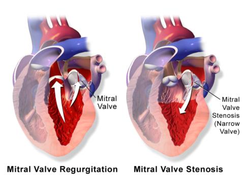 Схематическое изображение нарушенной анатомии митрального клапана.