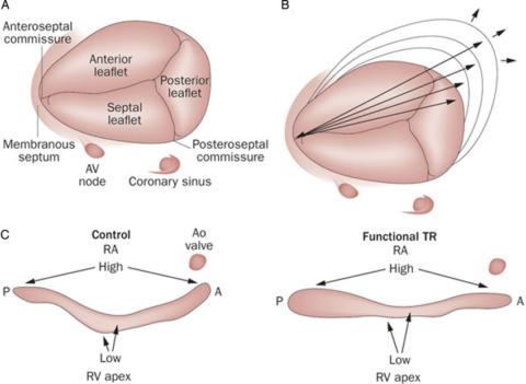 Схематическое изображение строения трикуспидального клапана.