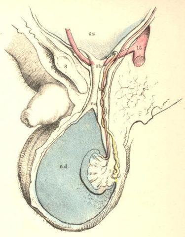 Схематическое изображение водянки яичка