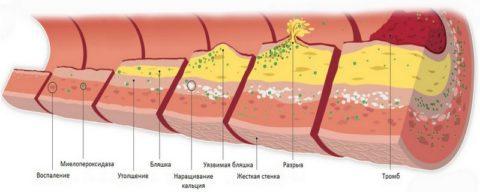 Стадии формирования холестериновой бляшки