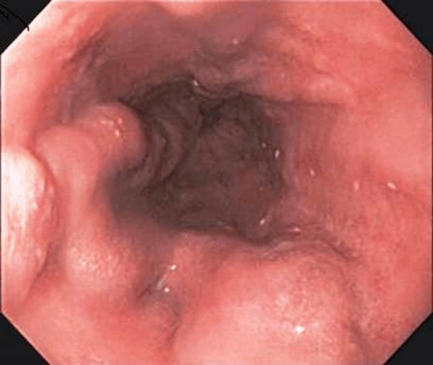 Эндоскопическая картина с варикозно расширенными венами пищевода.