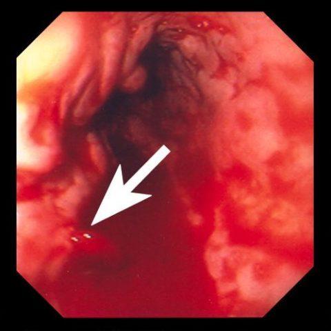 Стрелкой указано кровотечение из варикозно измененной вены.