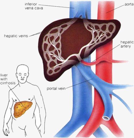 Уплотнение ткани печени ведет к повышению давления в системе воротной вены.