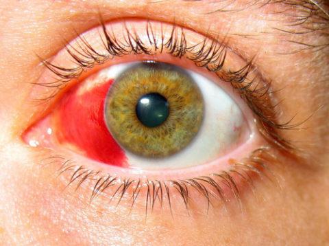 В сетчатке глаза