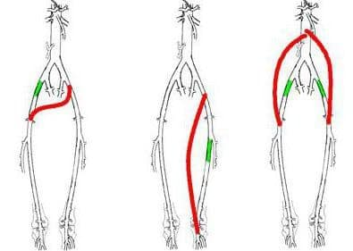 Варианты шунтирующих операций при поражении сосудов нижних конечностей