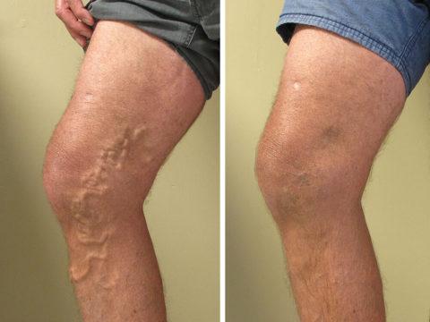 Внешний вид ноги до и после проведенного лечения.