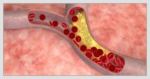 Холестерин чаще откладывается в зоне бифуркации сосудов