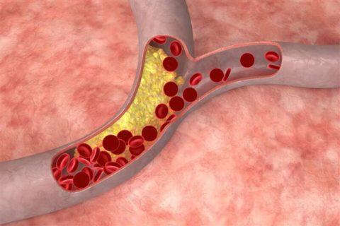 Холестерин в организме и питание.