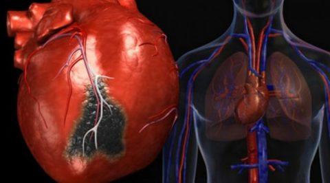 Инфаркт миокарда - частое осложнение кальциноза
