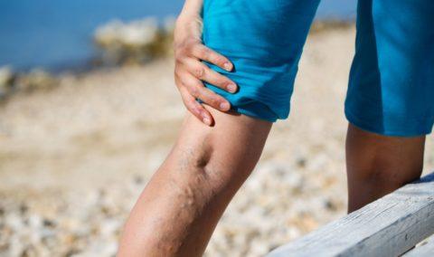 На фото пример нарушенного кровообращения в венах нижних конечностей