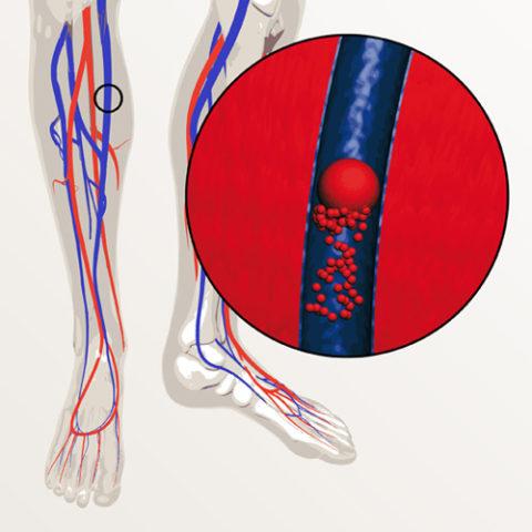 Современное лечение тромбофлебита позволяет улучшить качество жизни пациента