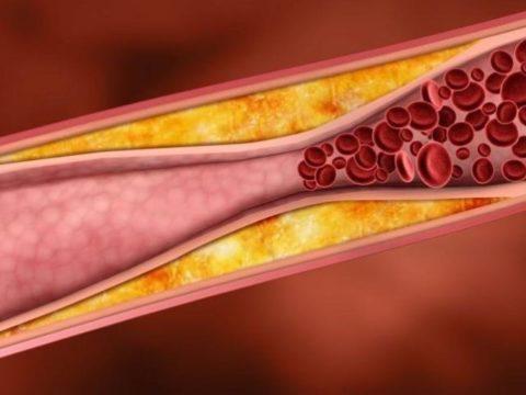 Сужение артерий на фоне атеросклероза и кальциноза