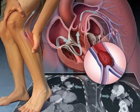 Тромбоэмболия как осложнение при патологии сосудов