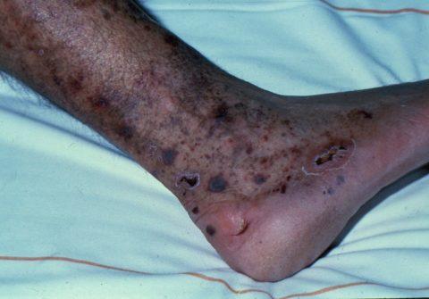 Язвы на ногах при запущенном атеросклерозе