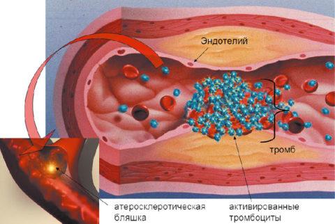 Схема формирования атеросклеротической бляшки в сосуде