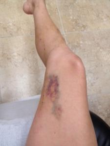 Гематома на ноге неделю спустя