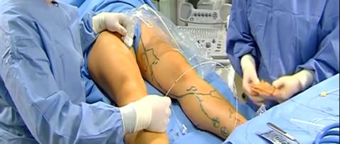 Как выглядит проведения операции