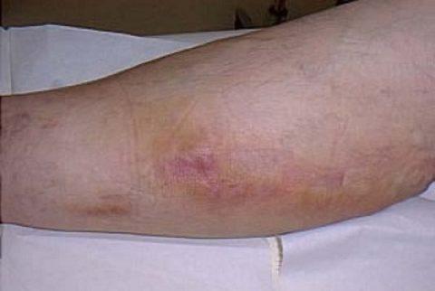 Месяц после процедуры эндовазальной лазерной облитерации
