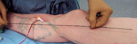 Вид оперируемой конечности во время эндовенозной лазерной облитерации