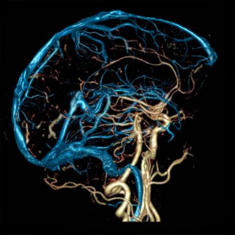 Снимок МРТ сосудов головы