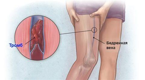 Кровяные образования (тромбы и сгустки)