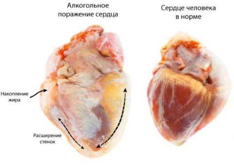 Сердце здорового человека и алкоголика