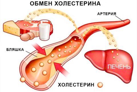 Схема образования холестериновой бляшки в сосуде