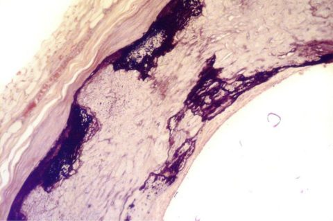 Фото атерокальциноза коронарной артерии